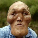 謎の病気!骨が成長して顔が大きくなり続けるジャガイモおじさん!