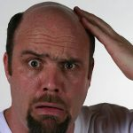 【朗報】ハゲてる男性は女性にモテる「人生の勝ち組」だったことが最新の研究で判明!!
