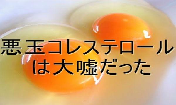 要注意!コレステロール・高血圧・塩分、嘘だらけの日本の健康基準