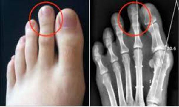 【驚愕】足の人差し指が親指より長い人は要注意!!生涯影響するデメリットが…