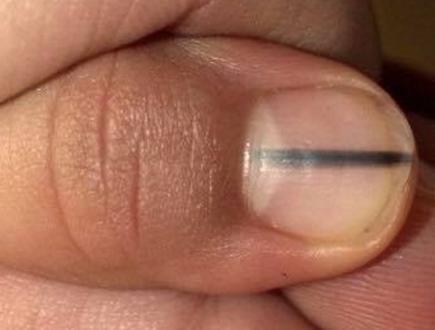 【警告】爪に黒い線が出ていたら、至急病院へ!その恐ろしい理由がこちら。