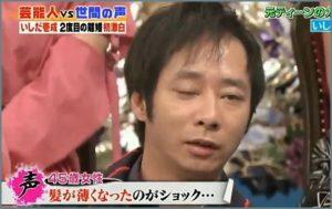 いしだ壱成、離婚ストレスでハゲ...