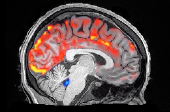 適切な睡眠が認知症予防に効果的との研究成果が発表
